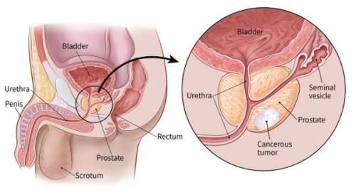 Cancerul de prostata (neoplasmul de prostata)