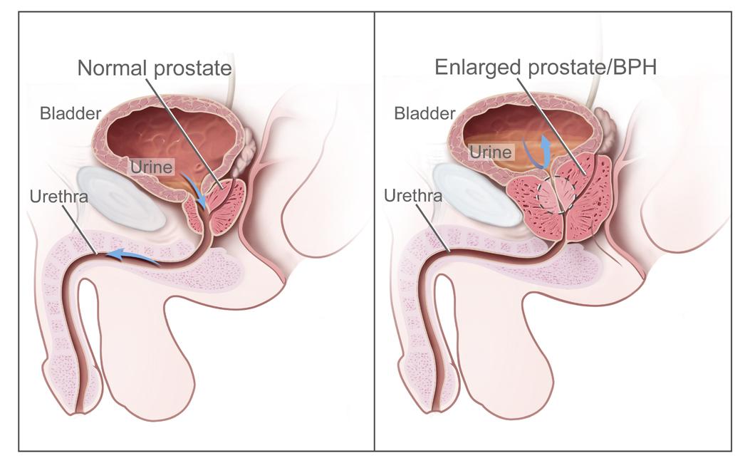 Hipertrofia benigna de prostata - adenomul de prostata