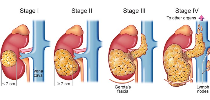 Tumorile renale parenchimatoase